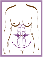 abdomino2